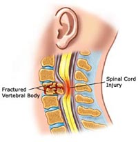spinal-cord-injury1