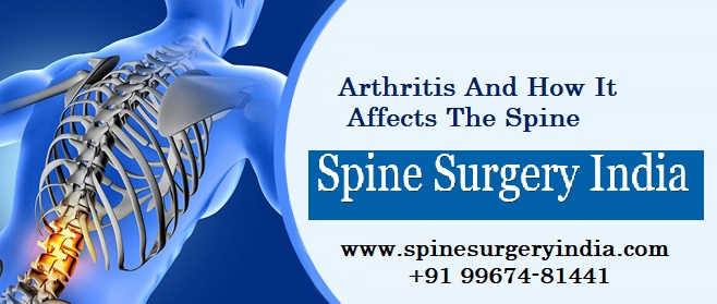 Arthritis and how it affects the Spine