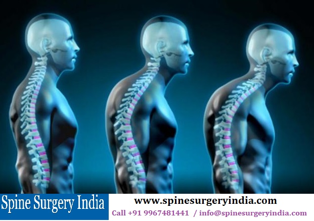 Kyphosis Surgery in India