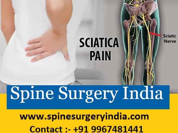 Sciatica Treatment india